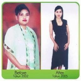 Cara tradisional mengecilkan perut | Obat tradisional ...
